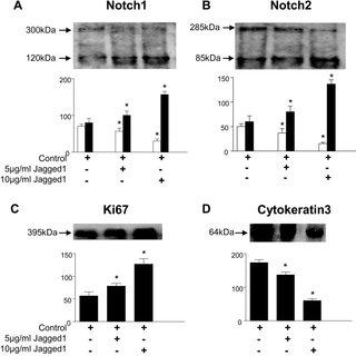 -Secretase inhibition of Notch1 and Notch2 in corneal