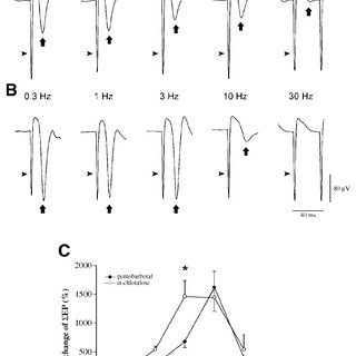 Comparisons between BOLD signal versus ensemble unit