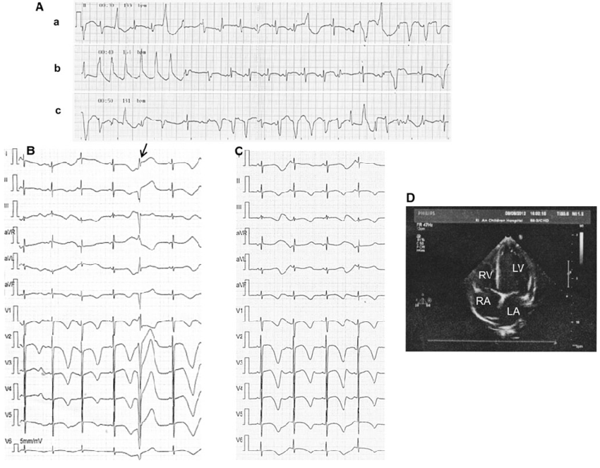 Proband's 12-lead ECGs and echocardiography. A Proband's