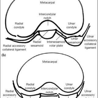 The classification of first MPJ dislocations. Normal first