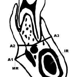 (PDF) Bone changes in the mandible following botulinum