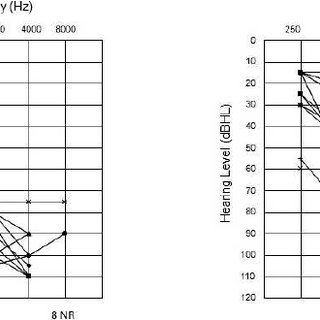 Monaural aided sound-field thresholds for the right and