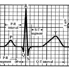 (PDF) Electrocardiograph (ECG) Circuit Design and Software