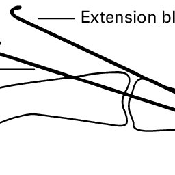 Extension-block splinting with an extra-articular or