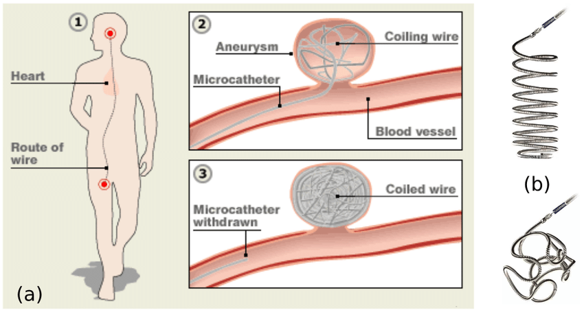 (a): Coil embolization procedure: a catheter is inserted ...