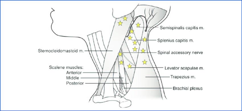 botox muscle diagram
