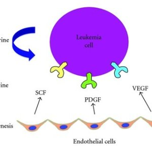 Acute Myeloid Leukemia Cells Within the Bone Marrow Microenvironment   Download Scientific