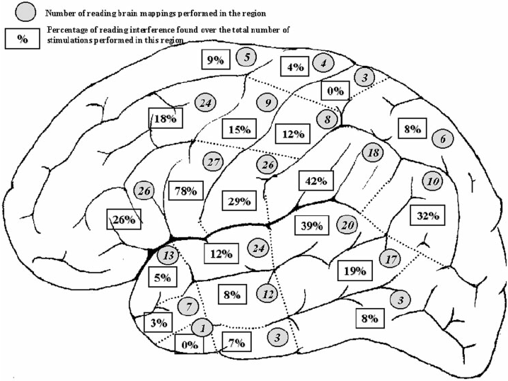 Reading location in the left hemisphere in 44 mono- or