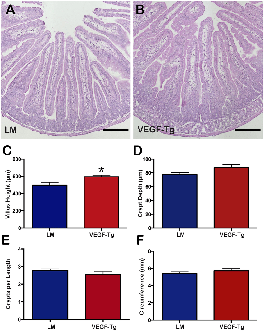 hight resolution of vegf mutant duodenum displayed longer villi compared to littermates a cross section