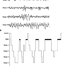 a the electroencephalographic eeg patterns associated with wakefulness and the stages of [ 789 x 1100 Pixel ]