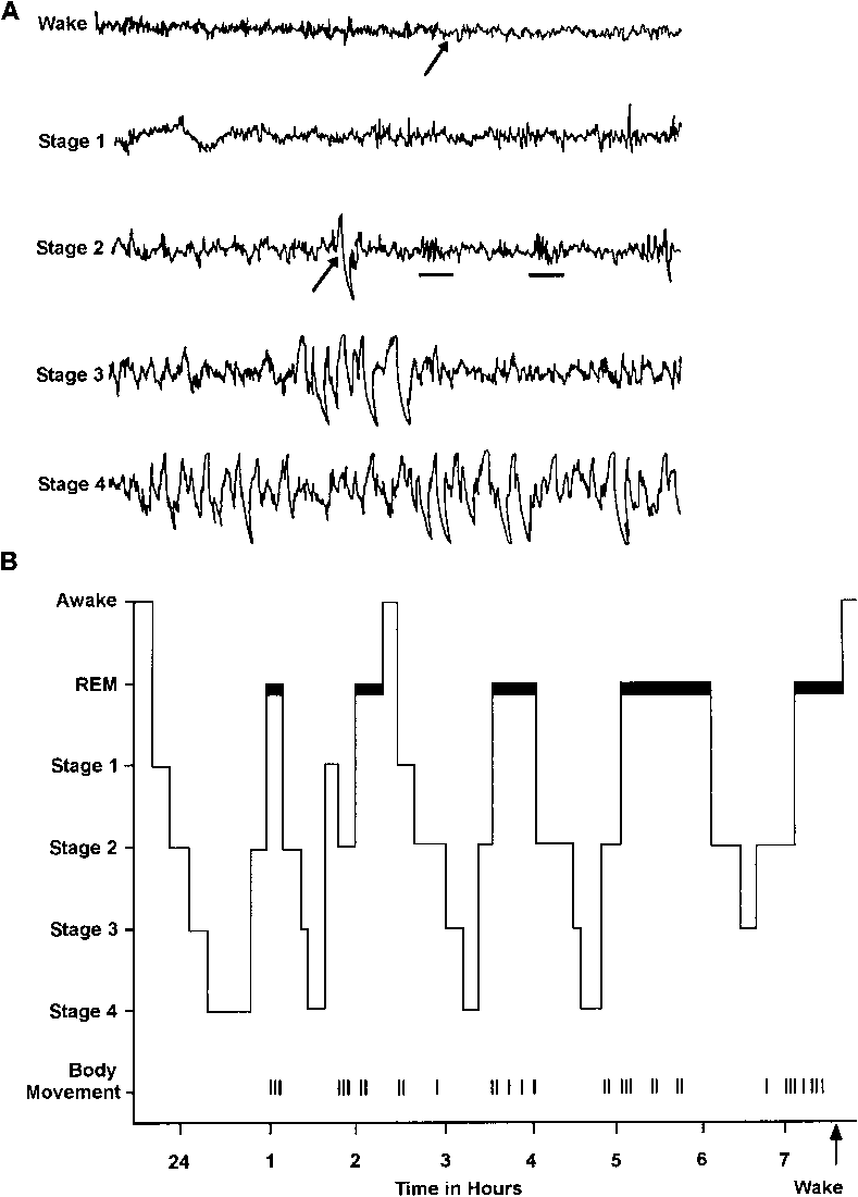 medium resolution of  a the electroencephalographic eeg patterns associated with wakefulness and the stages of