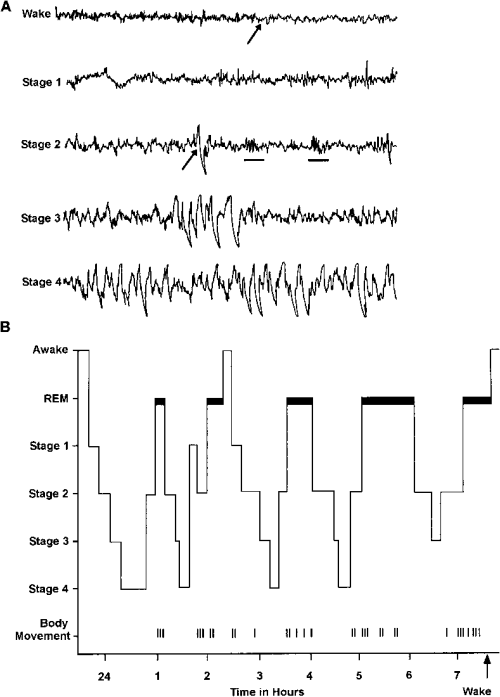 small resolution of  a the electroencephalographic eeg patterns associated with wakefulness and the stages of