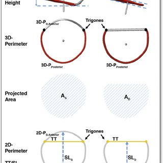 Saddle-Shaped and D-Shaped Mitral Annulus: Definition and