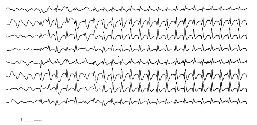 Extracts of video-EEG recordings of patients with typical