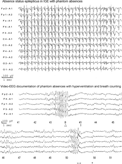 Two patients with idiopathic generalized epilepsy with