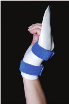 The Manchester short splint permits active wrist extension.