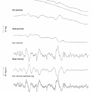 6 The four postural control systems in their typical order