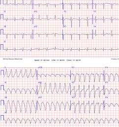twelve lead electrocardiograms a a 12 lead electrocardiogram ecg download scientific diagram [ 850 x 972 Pixel ]