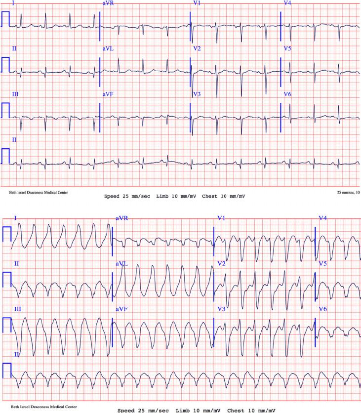 medium resolution of twelve lead electrocardiograms a a 12 lead electrocardiogram ecg download scientific diagram
