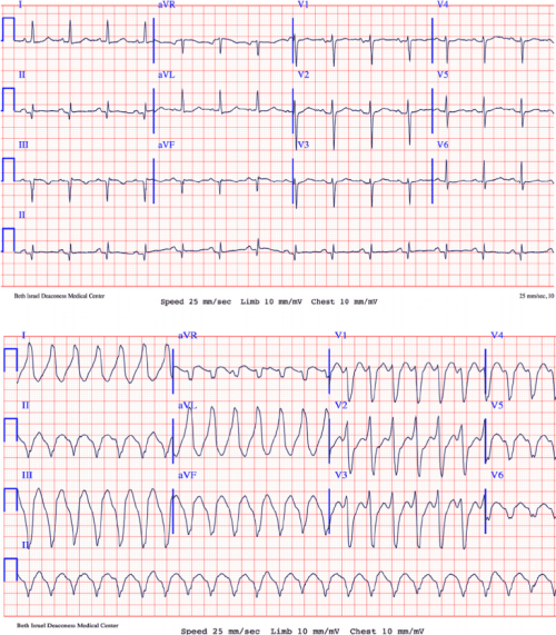 small resolution of twelve lead electrocardiograms a a 12 lead electrocardiogram ecg download scientific diagram