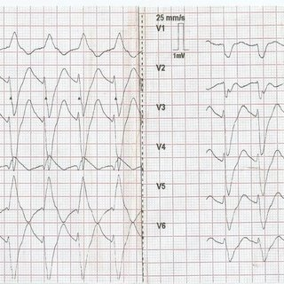 12 lead ECG after temporary ventricular pacing, depicting