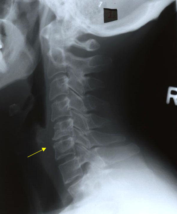 Degenerative disc disease with disc space narrowing and ...