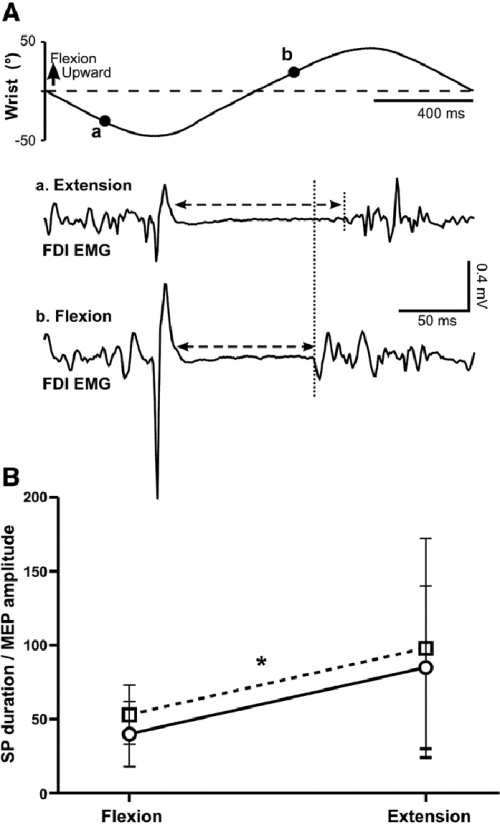 small resolution of silent period duration a examples of raw emg traces of fdi meps and download scientific diagram