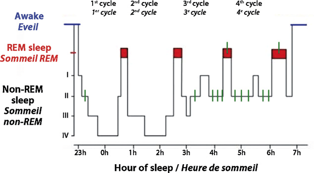 Hypnogram. Schematic diagram of a night's sleep. Note the