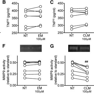 Effects of macrolides on PMA-induced MMP9 activation in