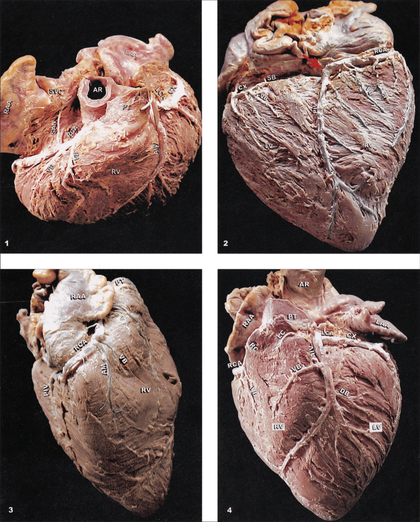 hight resolution of anterosuperior view of pig s heart showing the origin of the two coronary arteries the right