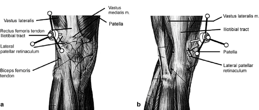 a Anterior and b lateral view of the knee depicting the