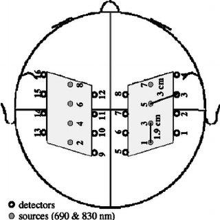 Block-averaged ⌬ [HbO] response in a left hand finger