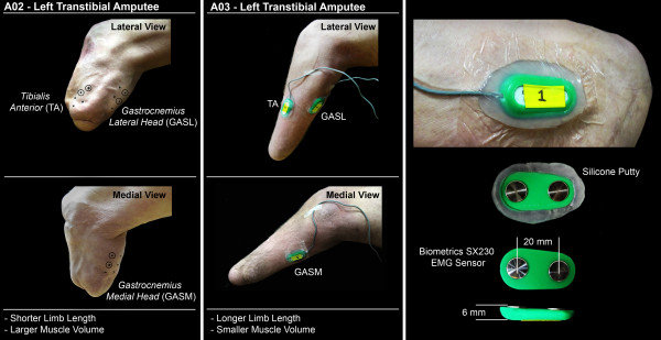 medial lower leg muscles diagram unified modeling language class surface electrode placement for residual tibialis download scientific