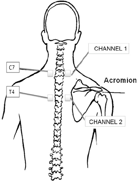 Electrode placement for transcutaneous electrical nerve