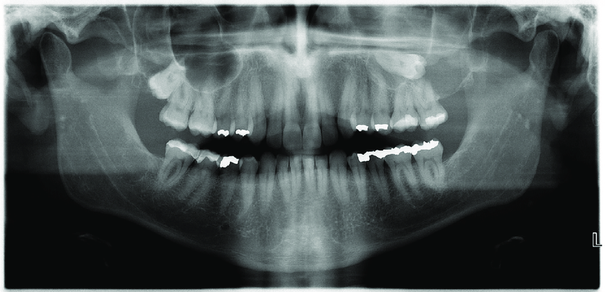 Preoperative panoramic dental X-ray showing the ectopic ...