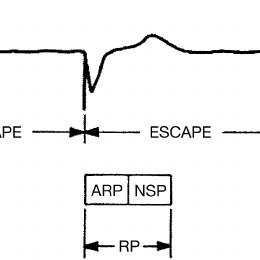 Block Diagram Of Ventricular Synchronous Demand Pacemaker