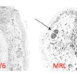 Blastema formation in the axolotl limb after amputation