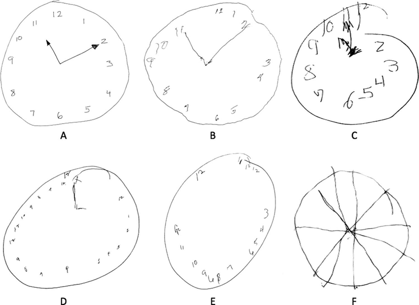 Representative Clock Drawings by Subjects With Recent