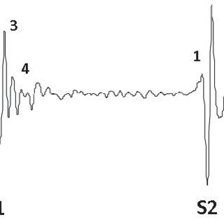 (PDF) Estimation of Blood Pressure and Pulse Transit Time