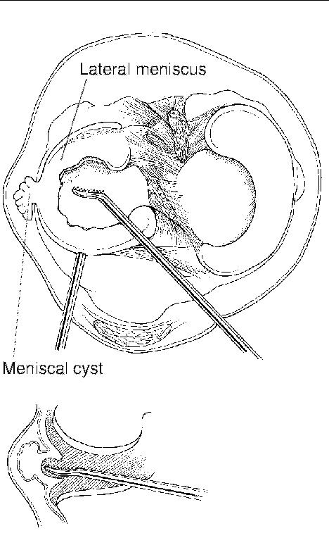 Arthroscopic decompression of a meniscal cyst with a rasp