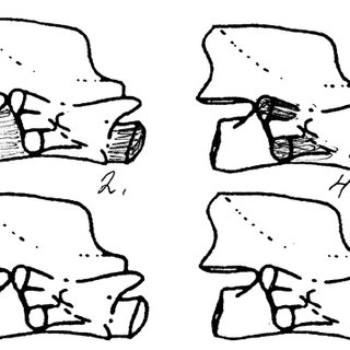 Schematic outline of salamandrid vertebrae in lateral view