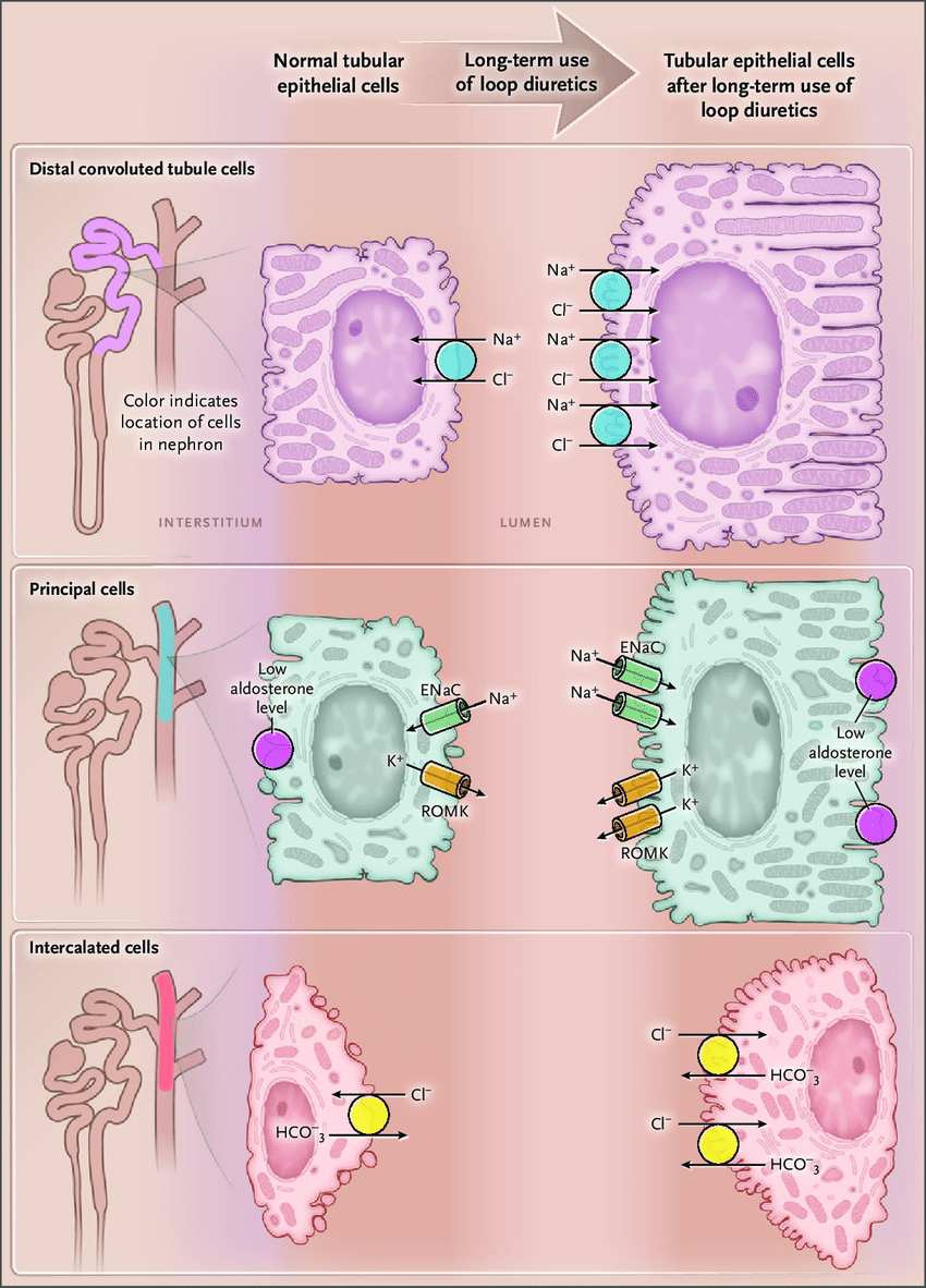medium resolution of nephron remodeling as a mechanism of diuretic resistance when high doses of loop diuretics are