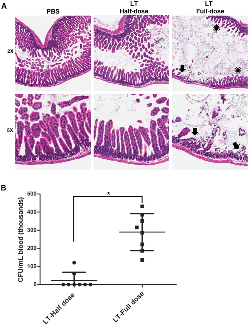 hight resolution of dose dependent effects of anthrax lt on the intestinal barrier a c57bl