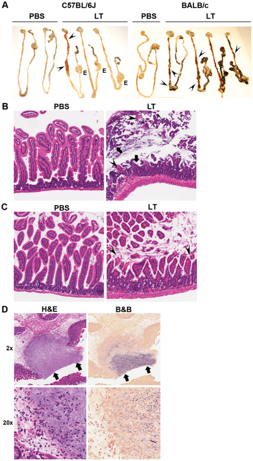 small resolution of anthrax lt causes intestinal damage in c57bl 6j and balb c mice