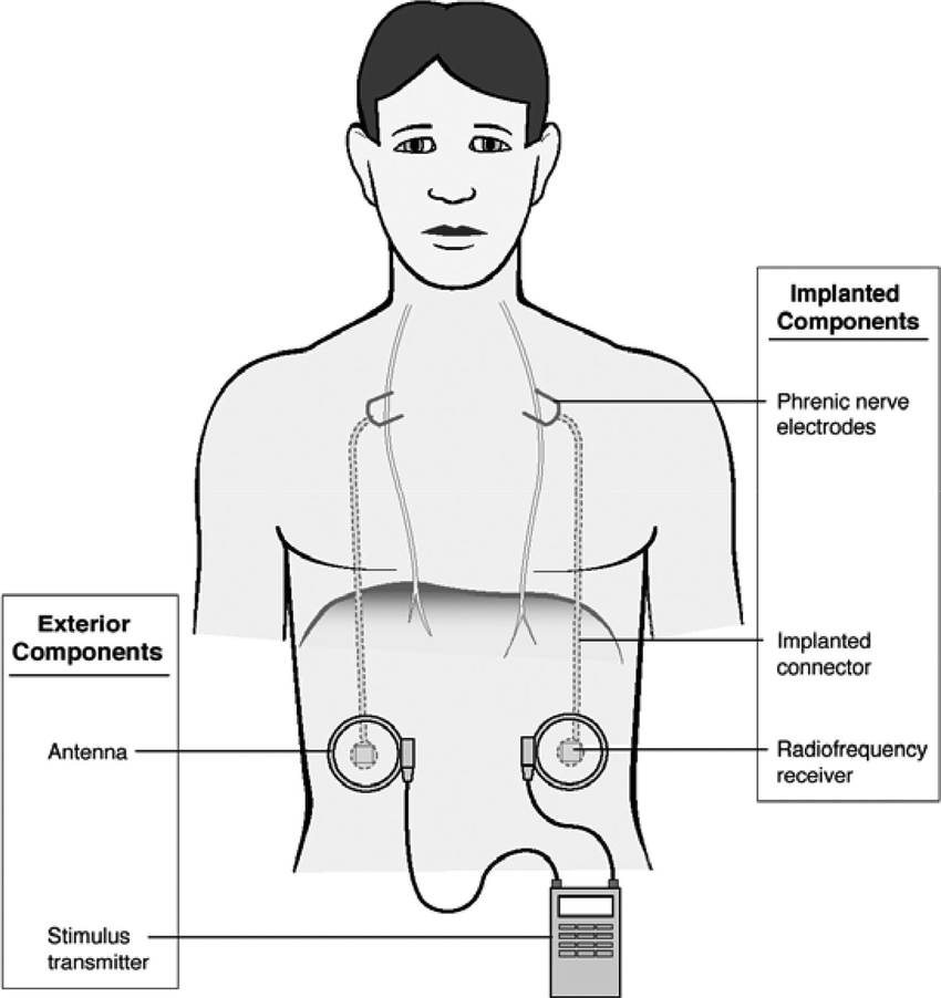 Functional electrical stimulation of the diaphragm for