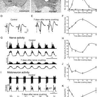 (PDF) Retrograde response in axotomized motoneurons