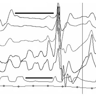 (PDF) Rules for Scoring Respiratory Events in Sleep
