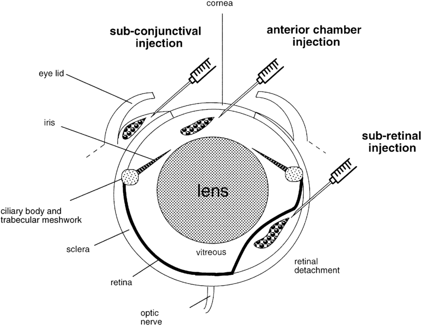 Schematic diagram of a mouse eye. The route of anterior