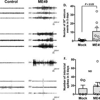 (PDF) Toxoplasma gondii Infections Alter GABAergic