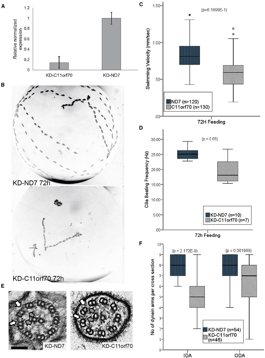 hight resolution of paramecium gene knockdown shows a conserved function for c11orf70 in dynein arm assembly a